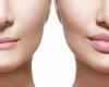 Top 5 mituri despre marirea buzelor