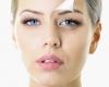 Tratamentul facial cu acid hialuronic - Reintinerirea pielii tale intr-un singur pas!