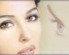 Blefaroplastie - chirurgia estetica a pleoapelor