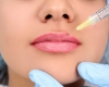 Marire buze cu grasime sau acid hialuronic - Garantia unei frumuseti rapitoare a chipului tau!