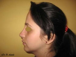 Rinoplastie primara - Caz 2