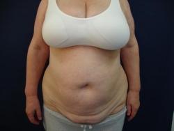 Abdominoplastie - Caz 2-abdominoplastie