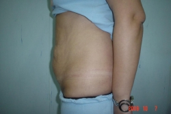 Abdominoplastie - Caz 1 - abdominoplastie