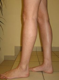 Implant gambe - Caz 3- implant gambe