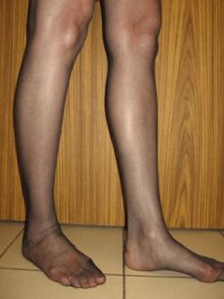 Implant gambe - Caz 4- implant gambe