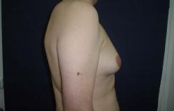 Ginecomastia - Caz 2 - Ginecomastie