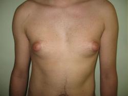 Ginecomastia - Caz 1