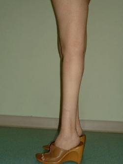 Implant gambe - Caz 2 - implant gambe