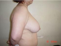 Micsorare sani - Caz 2