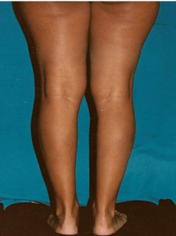 Implant gambe - Caz 1 - implant gambe