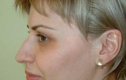 Implant barbie - Caz 1 - implant barbie