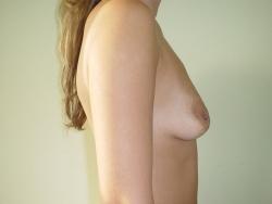 Ridicare sani si implant mamar - Caz 2 -ridicare sani si implant mamar