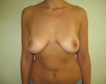 Ridicare sani si implant mamar - Caz 8 - ridicare sani si implant mamar