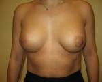 Ridicare sani si implant mamar - Caz 1 - ridicare sani si implant mamar