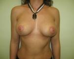 Ridicare sani si implant mamar - Caz 6 - ridicare sani si implant mamar
