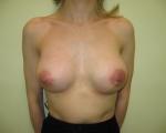 Ridicare sani si implant mamar - Caz 5 - ridicare sani si implant mamar