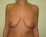 Ridicare sani si implant mamar - Caz 7 - ridicare sani si implant mamar