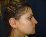 Rinoplastie primara - Caz 11