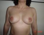 Ridicare sani si implant mamar - Caz 3 - ridicare sani si implant mamar
