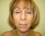 Lifting facial - Caz 4- lifting facial