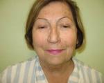 Lifting facial - Caz 3- lifting facial