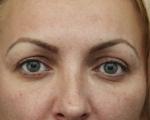 Blefaroplastie - Caz 7 - blefaroplastie