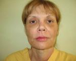 Lifting facial - Caz 6- lifting facial