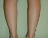 Implant gambe - Caz 5