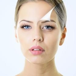 Chirurgia fetei - Tratament reintinerire cu toxina botulinica