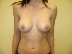 Implant mamar - Caz 1
